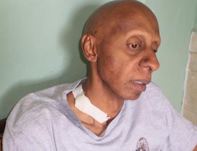 a COCO FARINAS, který pravě umirá na hladovku: